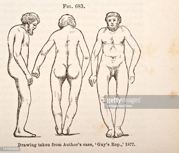 A medical engraving from 'A Manual for the Practice of Surgery' illustrates Paget's disease that is characterized by abnormal bone destruction and...