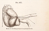 A medical engraving from 'A Manual for the Practice of Surgery' illustrates the surgical treatment of Paraphimosis 1881
