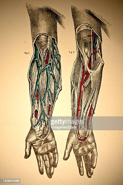 A medical engraving from 'A System of Human Anatomy Including its Medical and Surgical Relations' illustrates the cardiovascular system of human arms...