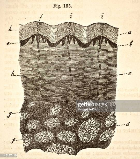 A medical engraving from 'Quain's Elements of Anatomy Eighth Edition VolII' depicts a vertical section of the skin and subcutaneous tissue from end...