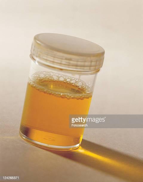 medical equipment, bottle, yellow