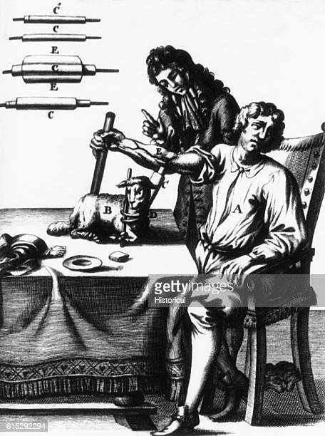 A medical illustration depicts a doctor giving a blood transfusion to a man from a sheep The transfusion instruments are illustrated in more detail...