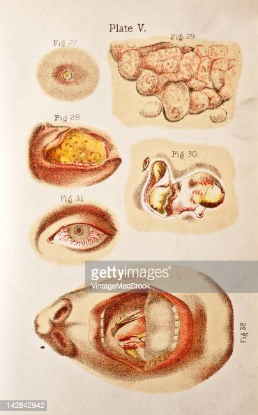 A medical illustration from 'A System of GenitoUrinary Diseases' depicts various skin diseases and infections 1893
