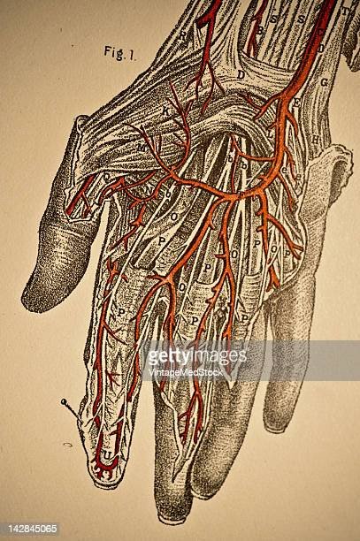 A medical illustration from 'A System of Human Anatomy Including its Medical and Surgical Relations' shows the arteries of the right hand 1883