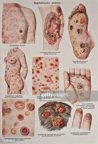 A medical illustration from 'Bilze De Nieuwe Natuurgeneeswijze' depicts six different cases of syphilis 1923