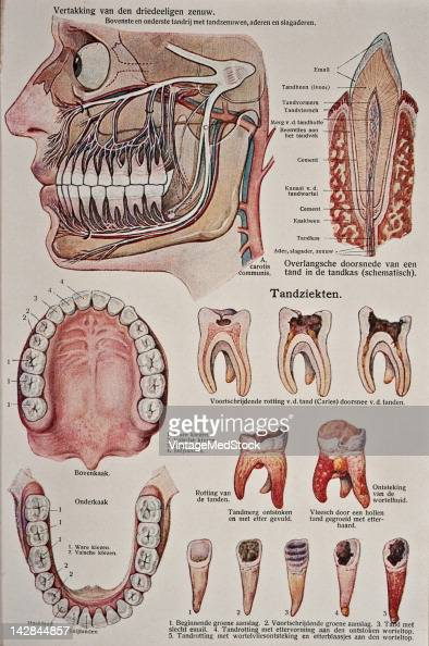 A medical illustration from 'Bilze De Nieuwe Natuurgeneeswijze' depicts anatomy of the human teeth and a number of dental diseases 1923