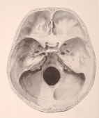 A medical illustration from 'HandAtlas of Human Anatomy volume 1' shows the base of the skull from the inside basis cranii externa 1923