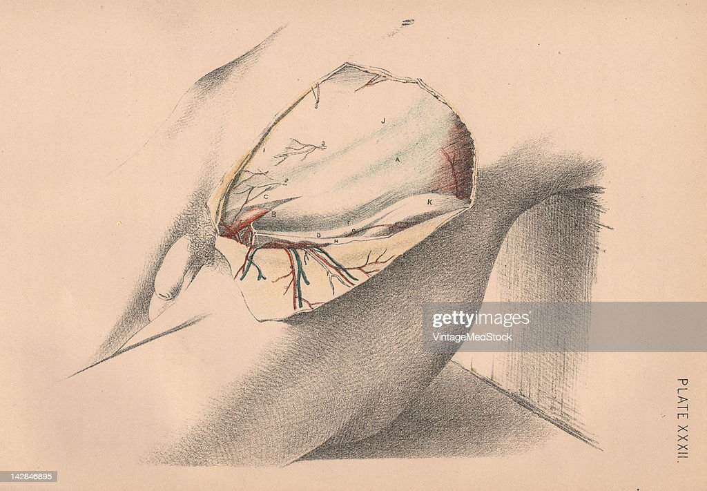 A medical illustration from 'Illustrations of Dissections' shows the beginning of autopsy of the male abdomen 1882