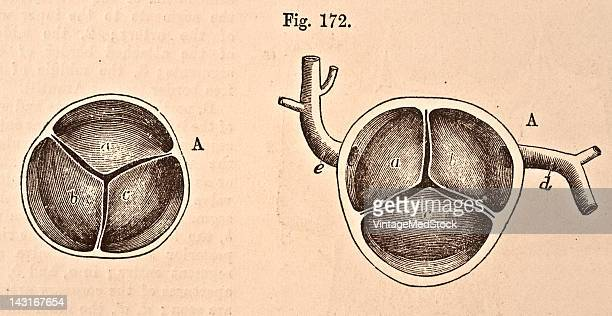 A medical illustration from 'Quain's Elements of Anatomy Eighth Edition VolII' depicts the semilunar valves of the aorta and pulmonary artery seen...
