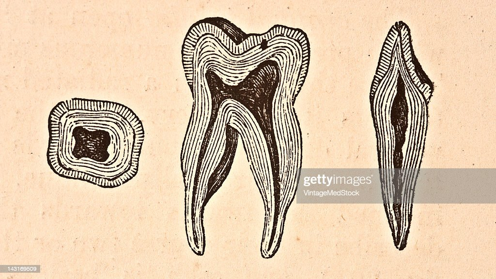 A medical illustration from 'Quain's Elements of Anatomy Eighth Edition VolII' depicts sections of an incisor and molar tooth 1876