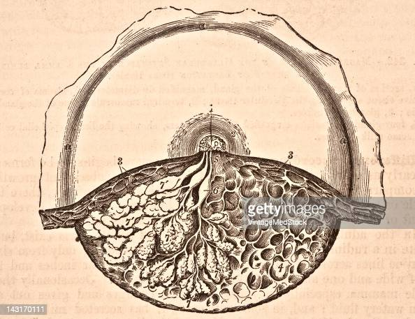 A medical illustration from 'Quain's Elements of Anatomy Eighth Edition VolII' depicts the dissection of the lower half of the female mamma during...