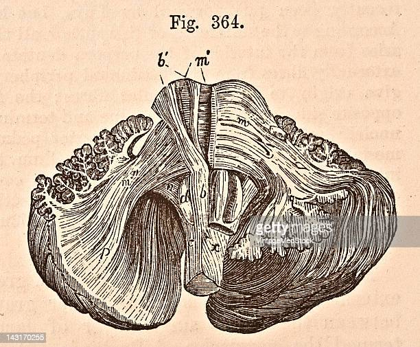 A medical illustration from 'Quain's Elements of Anatomy Eighth Edition VolII' depicts the view of a dissection of the fibres of the medulla...