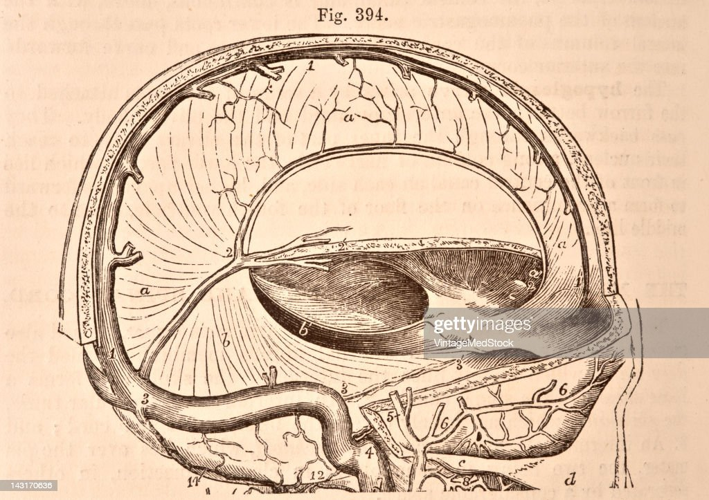 A medical illustration from 'Quain's Elements of Anatomy Eighth Edition VolII' depicts the cranium opened to show the falx of the cerebrum and...