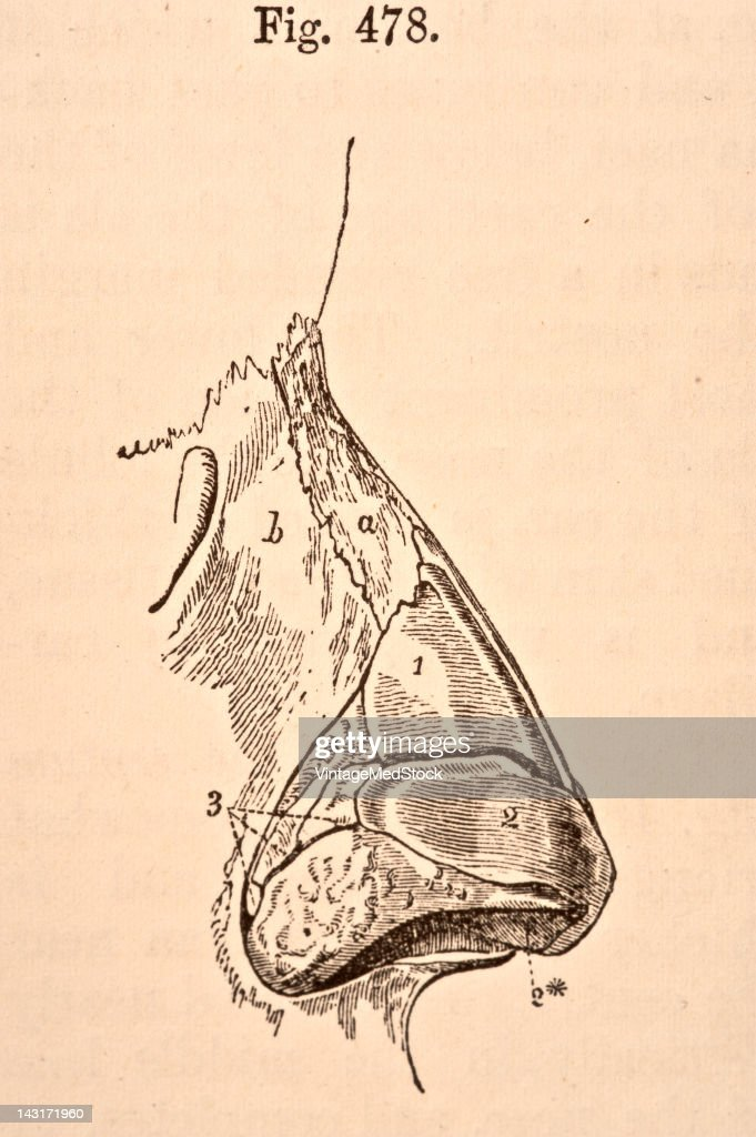 A medical illustration from 'Quain's Elements of Anatomy Eighth Edition VolII' depicts the lateral view of the cartilages of the nose 1876