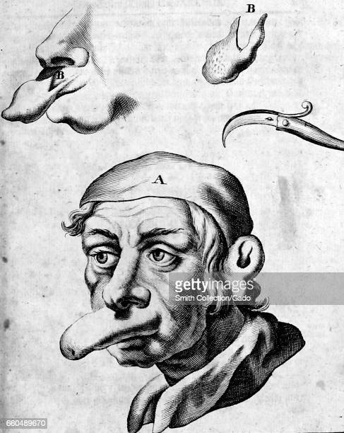Medical illustration of a man with a large protruding lip deformity as well as a detail view of the deformity and a surgical tool used to remove the...