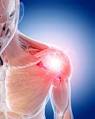 medical 3d illustration of a painful shoulder