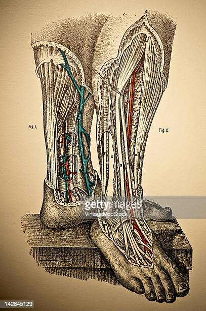 A medical lithograph from 'A System of Human Anatomy Including its Medical and Surgical Relations' illustrates the cardiocascular system of human...