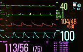 Medical monitor with bradycardia, normal blood pressure and oxygen level against a black background.