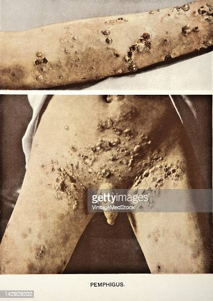 A medical photograph from 'Photographic Atlas of the Diseases of the Skin' illustrates a case of of a male suffering from Pemphigus a rare group of...