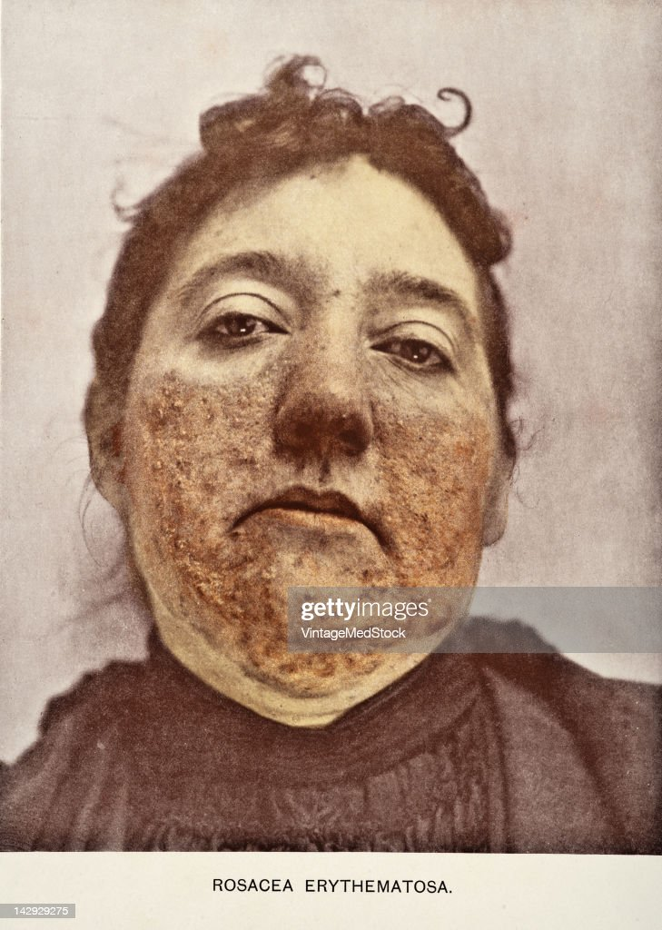 A medical photograph from 'Photographic Atlas of the Diseases of the Skin' (by George Henry Fox, AM, MD) illustrates a case of Rosacea Erythematosa, a chronic skin condition characterized by facial redness, 1903.