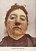 A medical photograph from 'Photographic Atlas of the Diseases of the Skin' illustrates a case of Rosacea Erythematosa a chronic skin condition...
