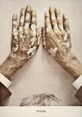 A medical photograph from 'Photographic Atlas of the Diseases of the Skin' illustrates a case of Vitiligo a condition causing depigmentation of the...