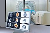 Medical scan monitor
