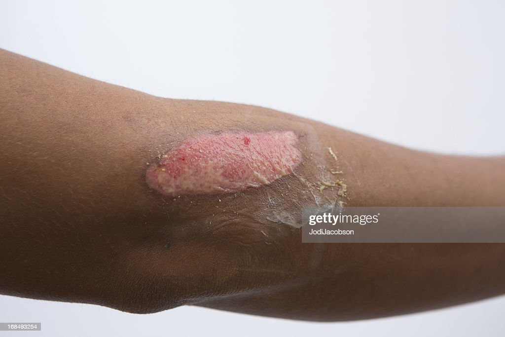 Burns: Types, Symptoms, and Treatments