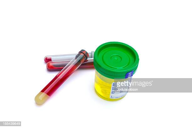 Medical: Sterile Urine sample and blood test