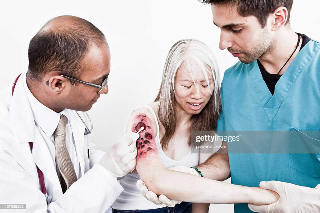 Medical Team Treating Burn Victim : Stock Photo
