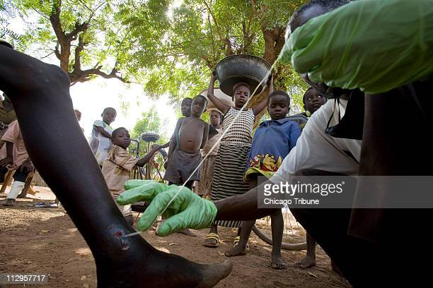 Medical worker Abaare Hussein right extracts a Guinea worm from a child's leg in Savelugu Village in northern Ghana February 6 2007 Hussein reaches...