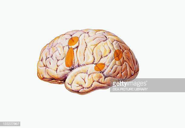 Medicine Anatomy Pathology Nervous system Brain Aphasia damaged brain areas Drawing