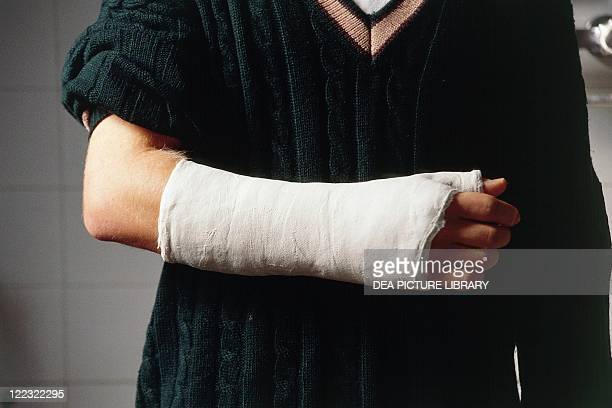 Medicine Orthopedics Limb with plaster bandage