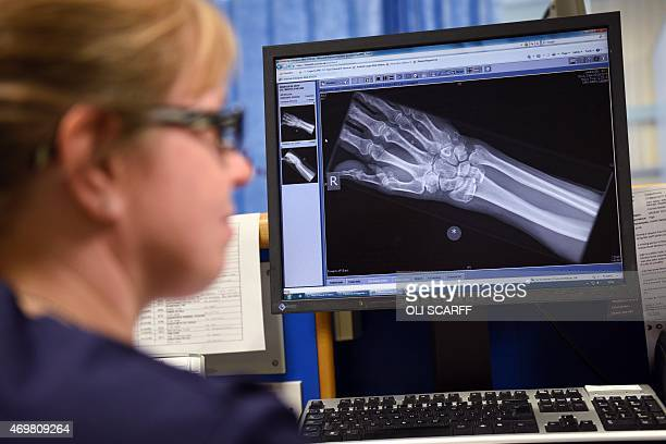 A member of clinical staff views an xray of a patient's hand on a computer screen in the Accident and Emergency department of the 'Royal Albert...