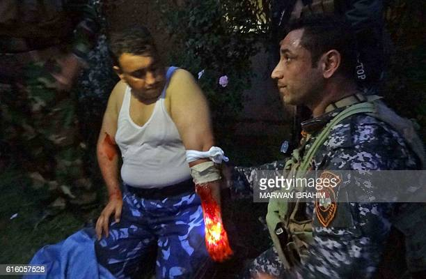 TOPSHOT A member of the Iraqi police receives treatment after being injured during clashes with jihadist gunmen in the southern suburbs of Kirkuk on...