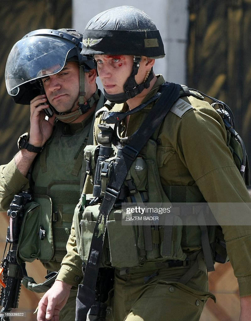 A member of the Israeli security forces with an injured eye caused by a stone thrown by Palestinian demonstrators is seen during clashes following a demonstration demanding the release of Palestinians detained in Israeli jails in the West Bank town of Hebron on April 3, 2013. Palestinians across the West Bank and Gaza were observing a general strike, with prisoners refusing food to mourn the death of a fellow inmate in an Israeli jail.