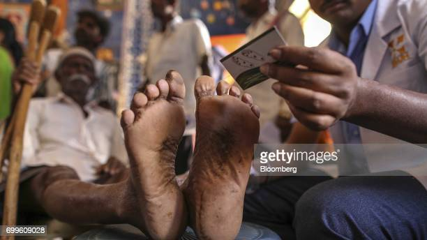 A member of the medical staff from the Jain Institute of Vascular Sciences examines the feet of a patient at a mobile clinic in Pancharala on the...