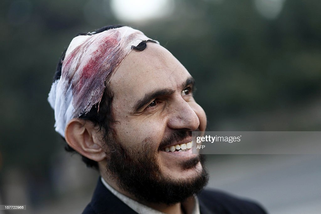 A Member of the Muslim Brotherhood, who was injured in clashes with anti-Egyptian President Morsi protestors during the previous night, smiles as he stands outside of the Egyptian presidential palace early on December 6, 2012. Egypt's army deployed tanks outside the presidential palace after five demonstrators died overnight in clashes between supporters and opponents of Morsi. AFP PHOTO/MAHMOUD KHALED