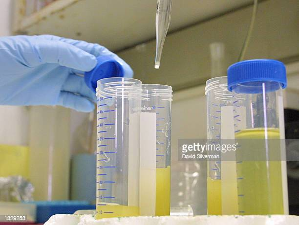 A member of the research team headed by Israeli neurologist Dr Ruth Gabizon tests infected hamster urine samples for bovine spongiform encephalopathy...