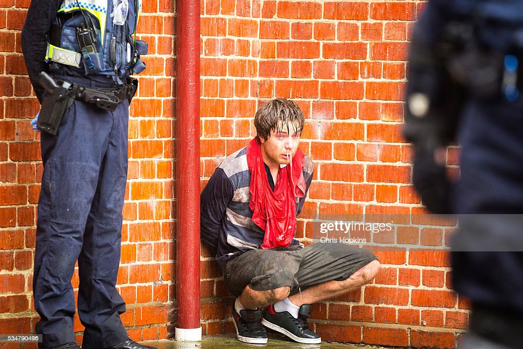 A member of the True Blue Crew awaits medical treatment after being capsicum sprayed by Poice at on May 28, 2016 in Melbourne, Australia. Violence erupted when participants in a 'Say No To Racism' rally protesting the forced closure of Aboriginal communities, off-shore detention centres and Islamophobia met with a counter 'Anti-Islam rally organised by the True Blue Crew and backed by the United Patriots Front.
