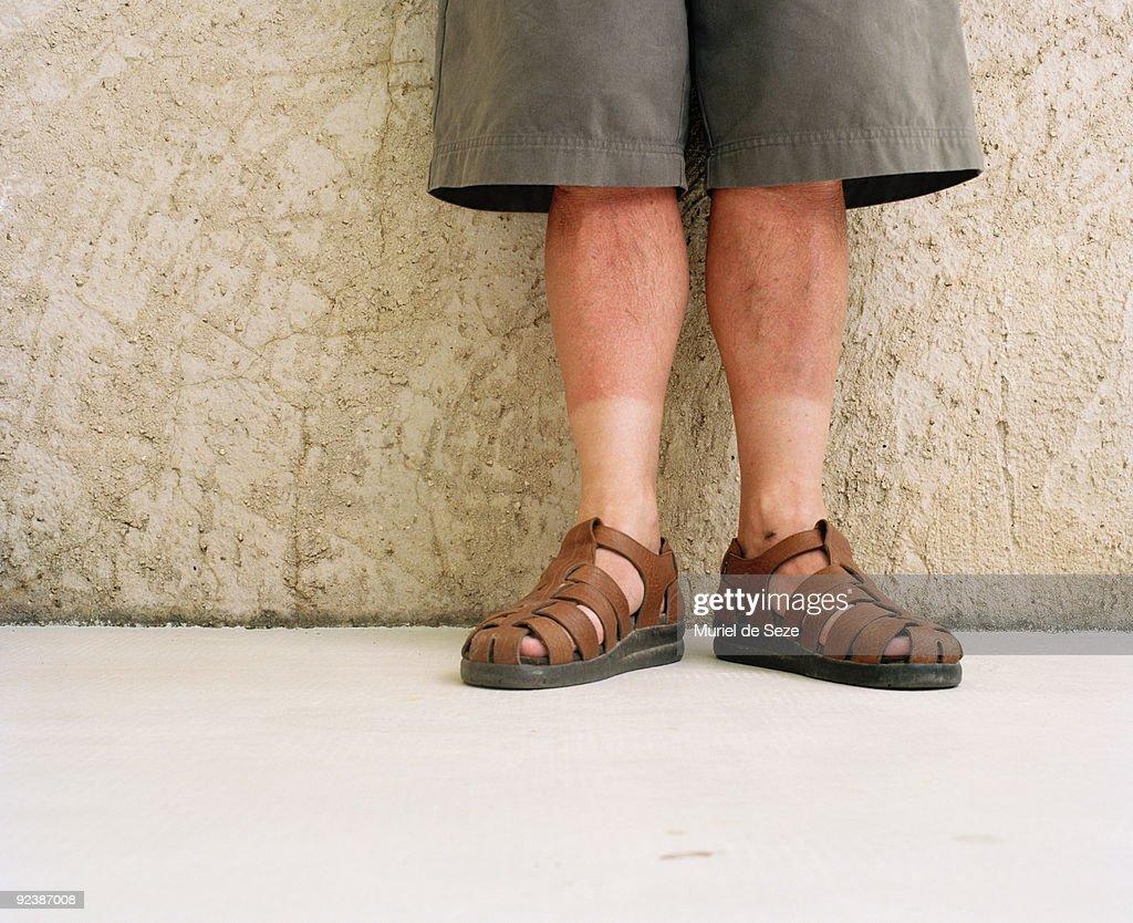 Men legs with sun burn