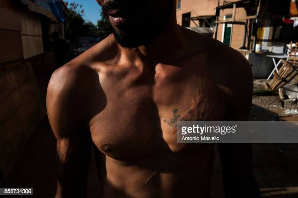 A men of 36 yo shows scars on his body outside an occupied building on October 4 2017 in Rome Italy For the last 5 years hundreds of people including...