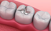 Metall dental fillings, Medically accurate 3D illustration