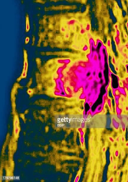 Metastasis Thoracic Vertebrae Sagital MRI Image Of The Thoracic Spine Shows A Malignant Tumor Of A Intervertebral Disc With Medullar Compression