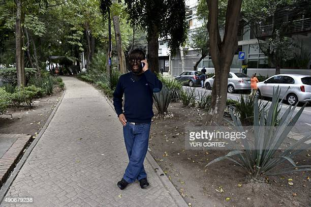 Mexican Jesus Aceves known as 'Chuy The Wolf Man' due to the condition of the disease hypertrichosis speaks on his mobile phone along a street after...