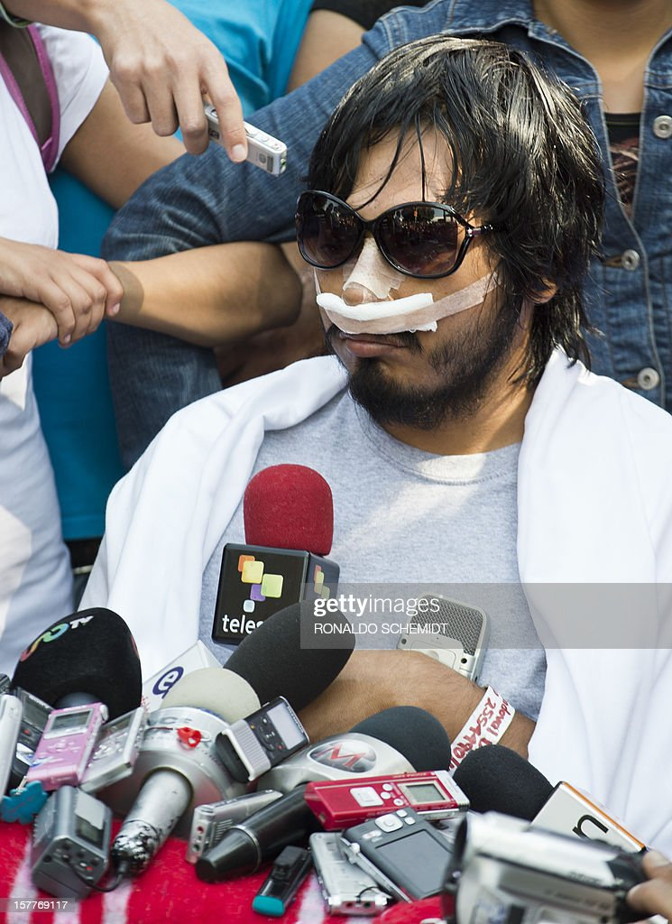 Mexican student Juan Uriel Sandoval gives a press conference at the General Hospital in Mexico City, on December 6, 2012. Urial Sandoval was injured and lost an eye in the riots that occured during the inauguration of Mexican President Enrique Pena Nieto on December 1. AFP PHOTO/RONALDO SCHEMIDT