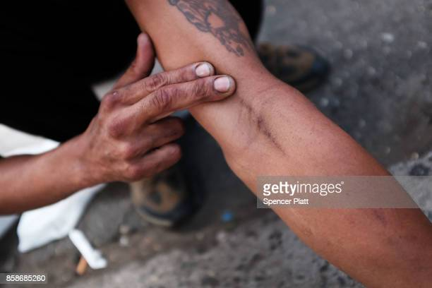 Michael displays needle marks where he and a fellow addict live in the South Bronx neighborhood which has the highest rate of heroininvolved overdose...