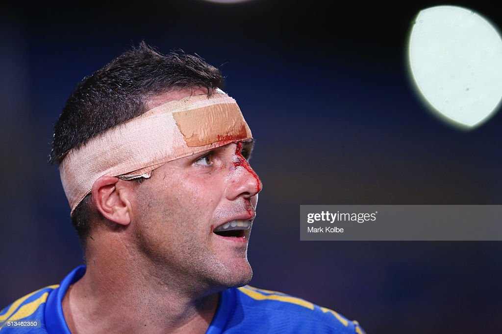 Michael Gordon of the Eels watches on with blood coming from a head wound during the round one NRL match between the Parramatta Eels and the Brisbane Broncos at Pirtek Stadium on March 3, 2016 in Sydney, Australia.