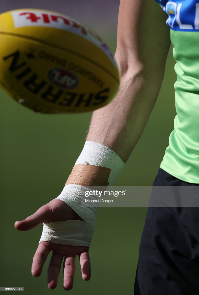 Michael Hurley of the Bombers with his bandaged up hand during an Essendon Bombers AFL training session at Windy Hill on April 19, 2013 in Melbourne, Australia.