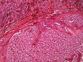 Microscope view of malignant melanoma